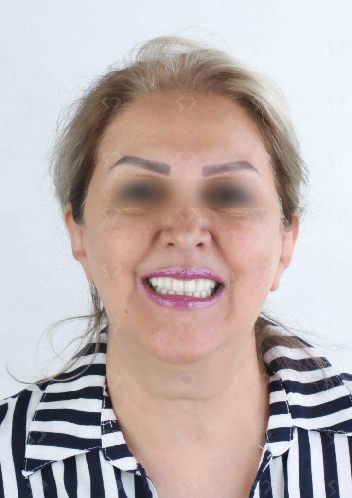 نمونه و کیس ایمپلنت دندان - کلینیک دندانپزشکی دکتر صدری منش