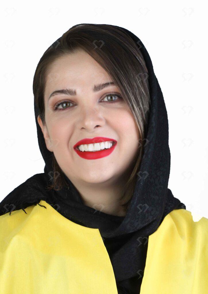 نمونه و کیس لمینیت سرامیک دندان - کلینیک دندانپزشکی دکتر صدری منش