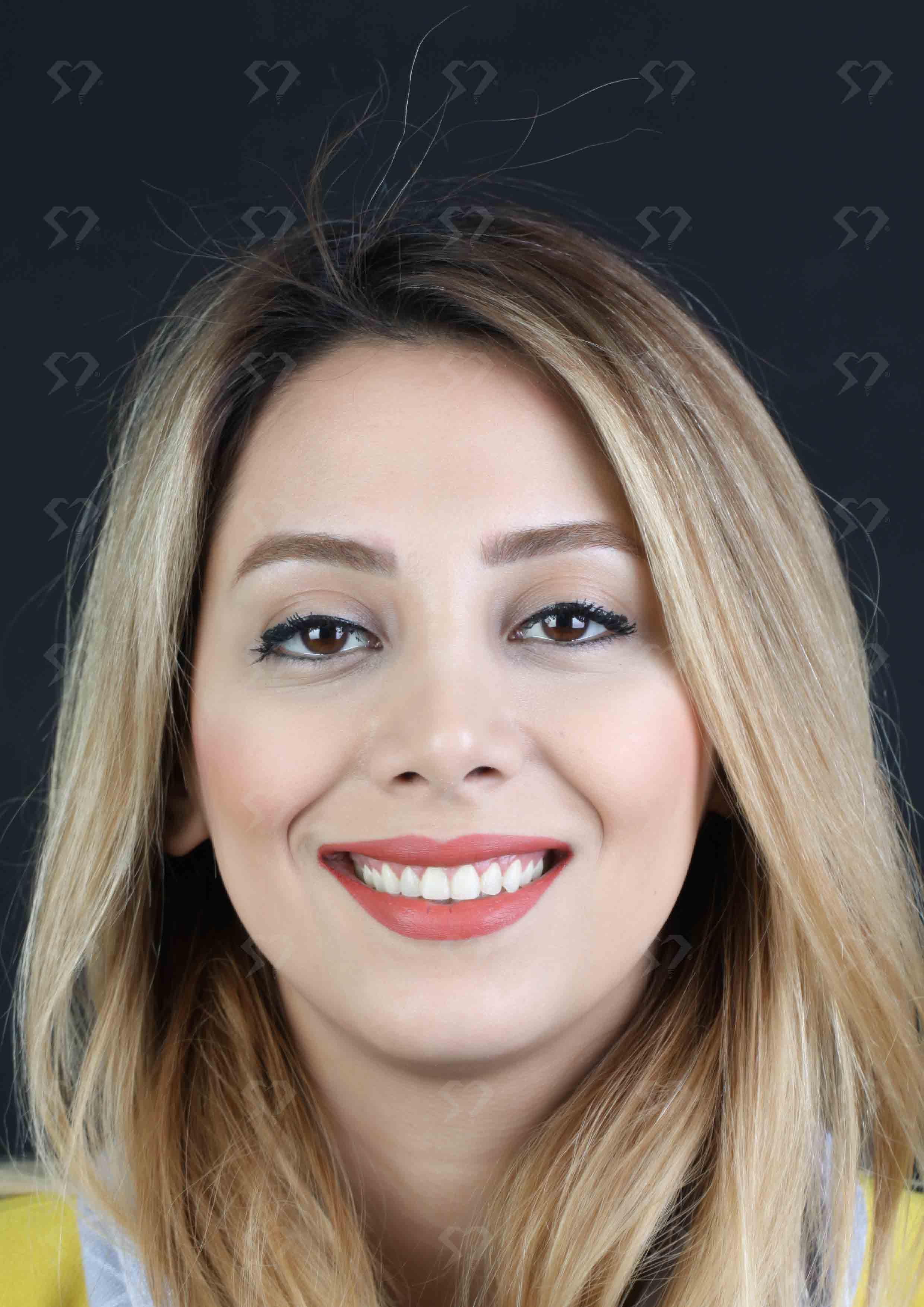 نمونه و کیس جراحی لثه - کلینیک دندانپزشکی دکتر صدری منش
