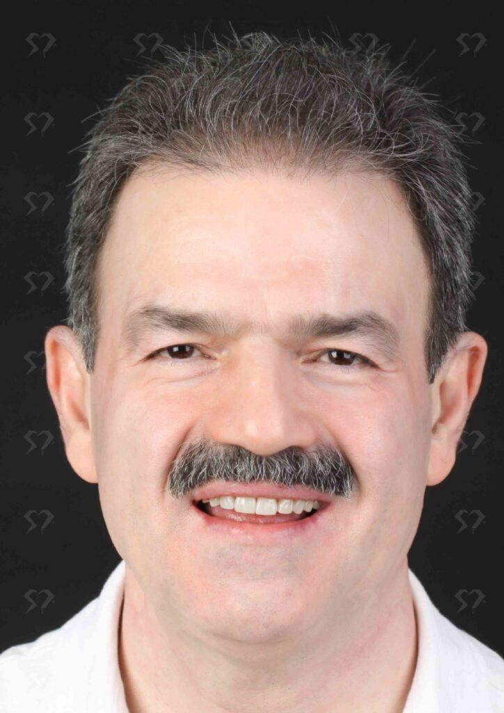 نمونه و کیس سایش دندانی- کلینیک دندانپزشکی دکتر صدری منش