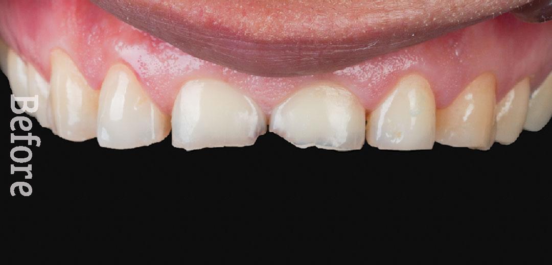 نمونه و کیس سایش دندان - کلینیک دندانپزشکی دکتر صدری منش