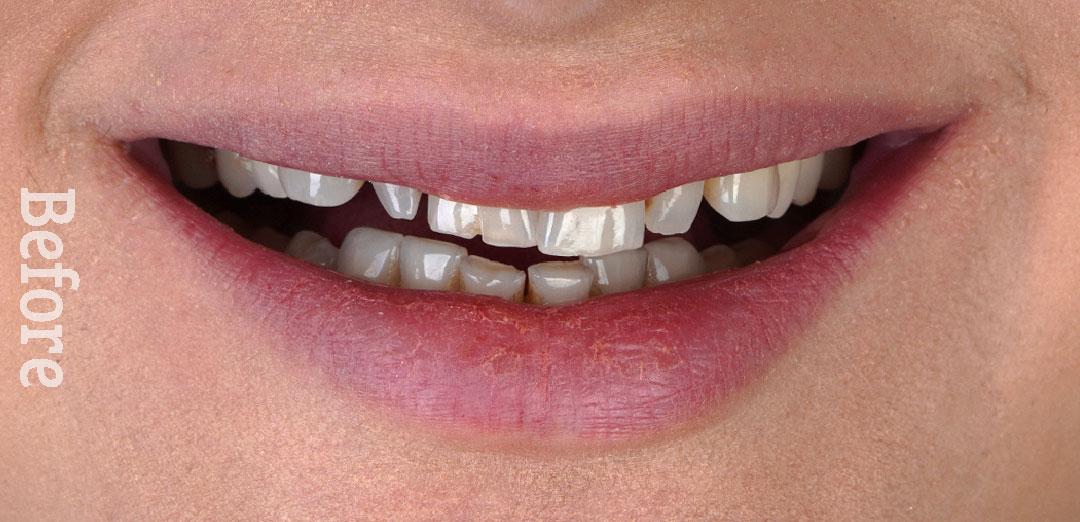 نمونه و کیس کامپوزیت ونیر دندان - کلینیک دندانپزشکی دکتر صدری منش