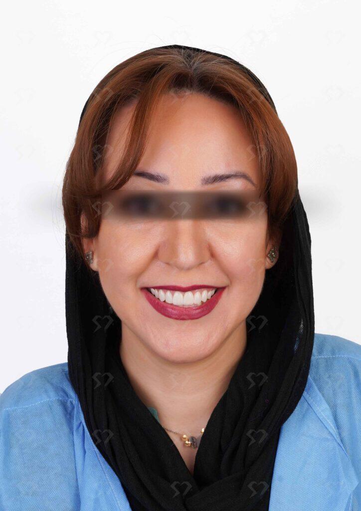 نمونه و کیس لمینت دندان - کلینیک دندانپزشکی دکتر صدری منش